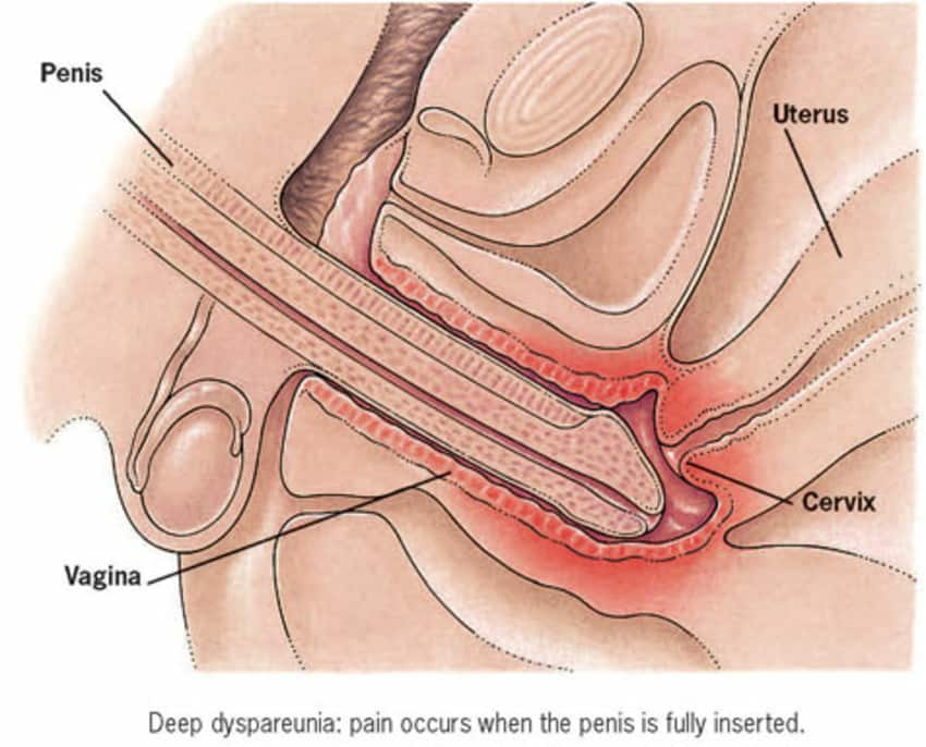 How To Not Have Pain During Intercourse