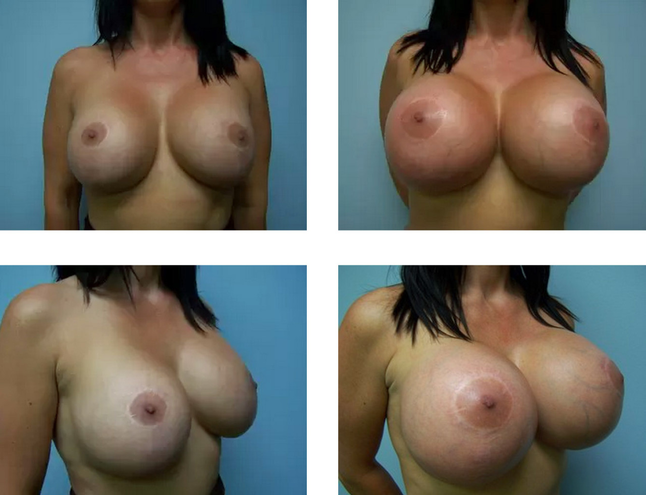 Your Breasts After Breastfeeding